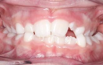 Louise, 8 ans<br>Traitement orthodontique de première intention