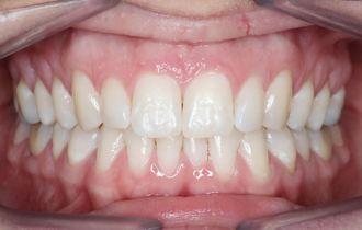 Charlotte, 30 ans<br>Traitement orthodontique adulte