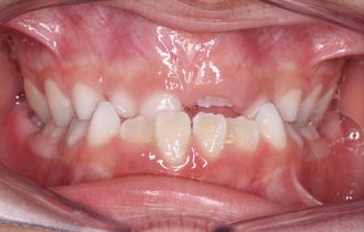 Diego, 7 ans<br>Traitement orthodontique de premier intention