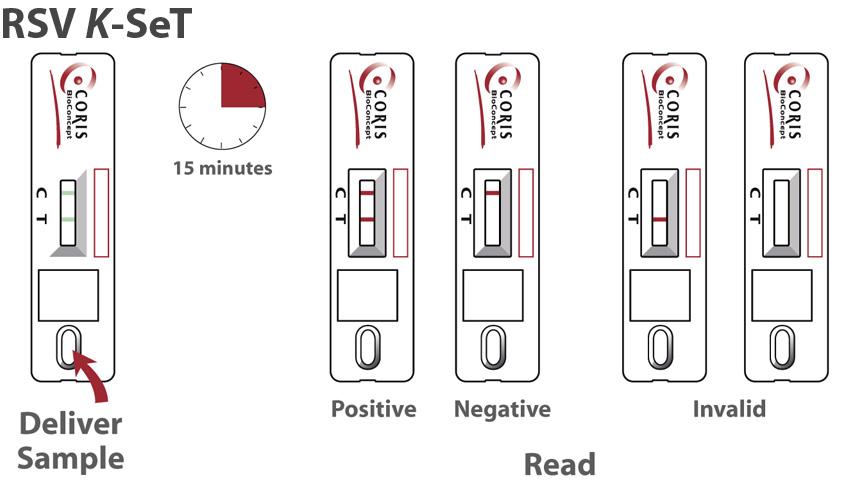 Procedure RSV