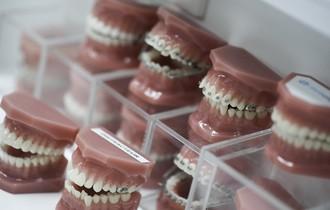 Avantages d'un traitement orthodontique