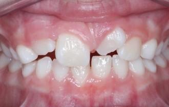 Alexie, 9 ans<br>Traitement orthodontique préventif