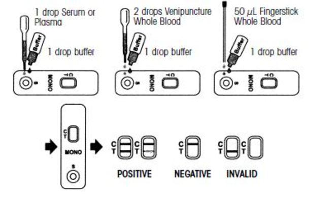 Mononucleusis Rapid Test Device